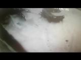 В Петропавловске внедорожник сбил школьника: у ребенка тяжелые травмы