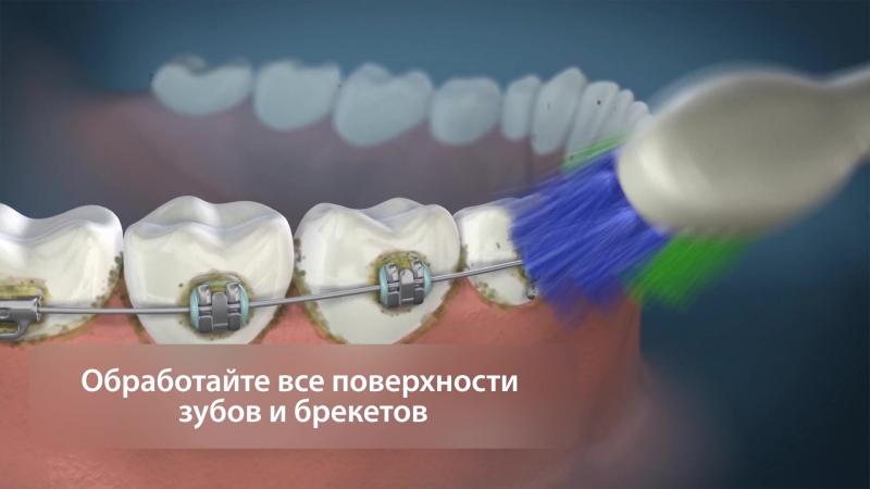 Ортодонтическое лечение вместе с Waterpik