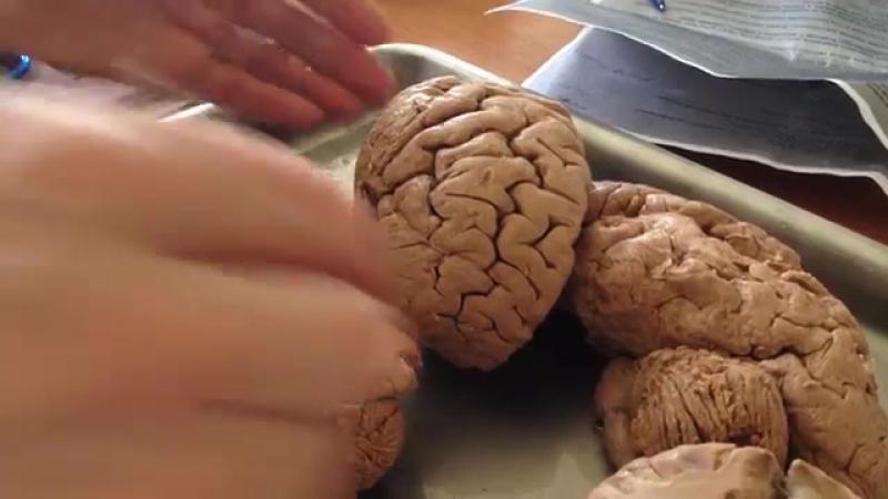 Кора больших полушарий головного мозга » Freewka.com - Смотреть онлайн в хорощем качестве
