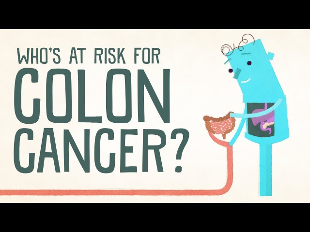 Whos at risk for colon cancer - Amit H. Sachdev and Frank G. Gress