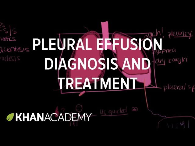 pleural effusion causes diagnosis and treatment - 480×360