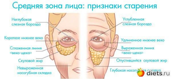 актуальным проявление гипертонуса лицевых мышц это