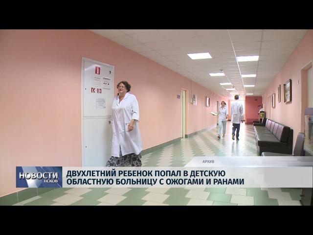 Новости Псков 17 01 2018 Двухлетний ребенок попал в Детскую областную больницу с ож