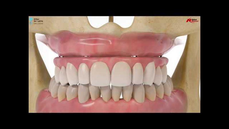 Nobel Biocare - Зубы за 1 день (ALL-ON-4)-Все на 4: Концепция лечения. Сеть клиник Зубы за 1 день
