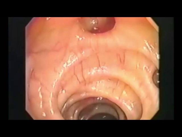 Доктор Хироми Шинья Сыроедение Воздействие молочнокислых бактерий на человека ...