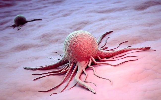 Как связаны рак и инцест - 40 фактов о ужасном заболевании