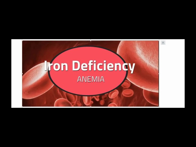 Iron Deficiency Anemia Part 3
