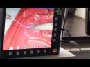 Лапароскопический скользящий узел в исполнении профессора Фингенштейна