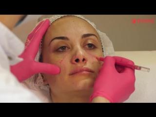 Эстетическая коррекция визуальный реперов лица в комбинации плацентарной ревитализацией