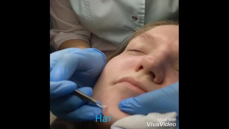 Механическая чистка лица. Косметолог Наталья Заозернова
