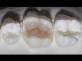 Direct restoration with Essentia from GC.