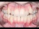 Сильная скученность зубов: исправление невидимыми брекетами WIN