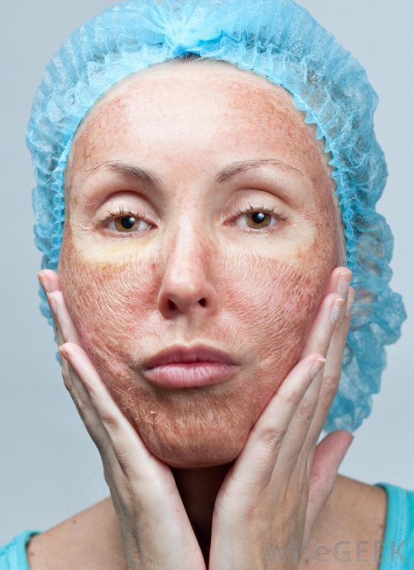 чем лечить сухую кожу рук