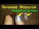 Фольга как лечить Лечение суставов фольгой Боли в коленях уходят от фольги Артрит Артроз