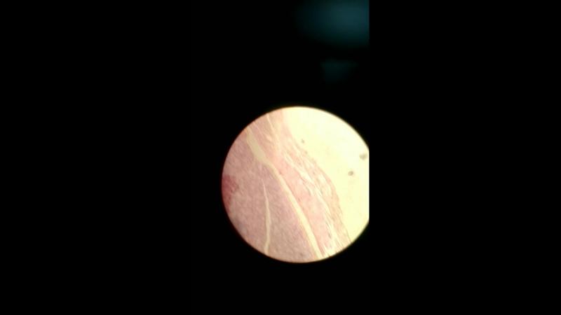 подъязычная слюнная железа