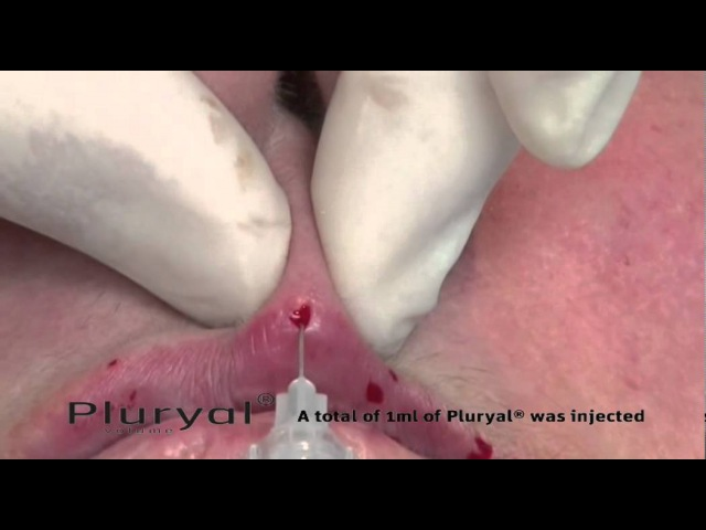 5 Pluryal Volume Upper Lip augmentation and mandibular correction