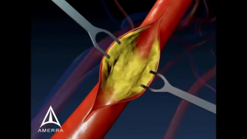 Carotid Endarectomy 3D Medical Animation