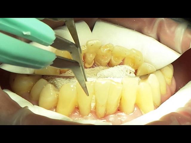 24 May. Mariia Nosova. Splinting and Periodontal Surgery. Part 1