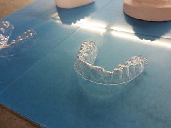 Американец открыл новое изобретение для зубов (Фото)