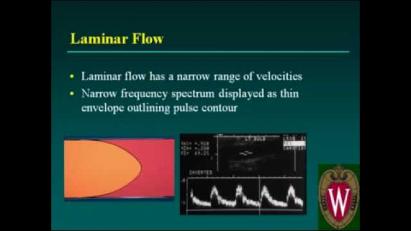 Carotid Sonography Doppler Evaluation and Waveform Analysis