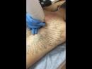 глобальное удаление тату в нашей студии