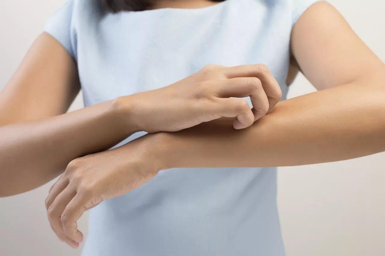 Является ли ваша сыпь укусом клопа в постели или это просто аллергия?
