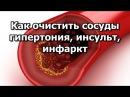 Как очистить сосуды - гипертония, инсульт, инфаркт