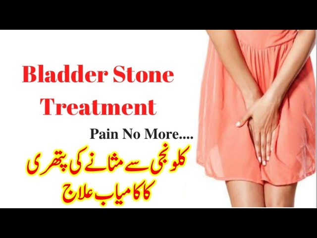 Home Remedies Of Kidney And Bladder Stone | Bladder Stone Treatment | How To Cure Bladder Stone
