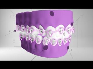 Пропедевтика ортодонтии. Изучаем итальянский.