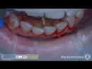 Удаление зубных камней в межзубных промежутках при скученности зубов Acteon 008 4K B Апокин А Д