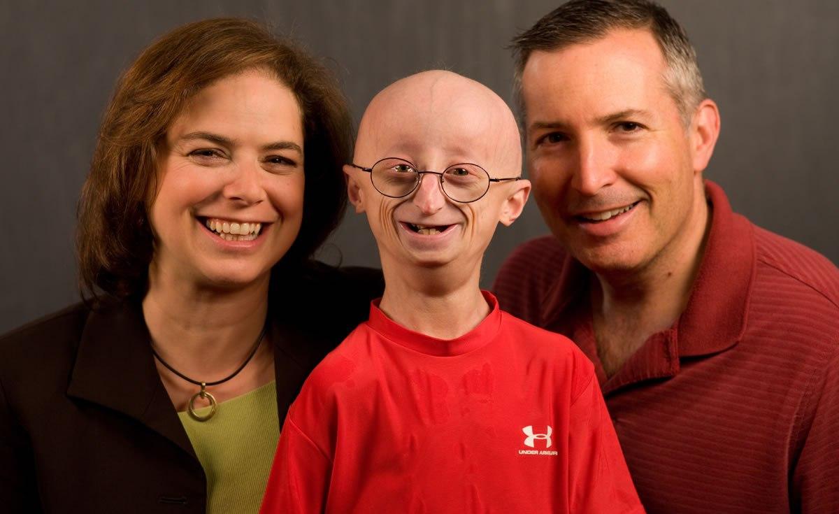 Мальчик-старик умер в 17 лет, но дал толчок к изучению его болезни
