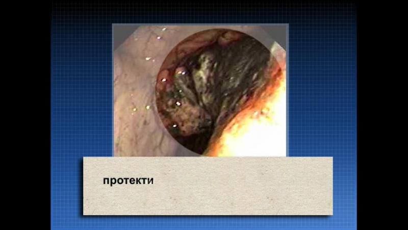 16 Риск развития рака при ВЗК