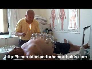 Master Wang Is The Creator Of Bai Zhi Ling Hemroid Helper PartA