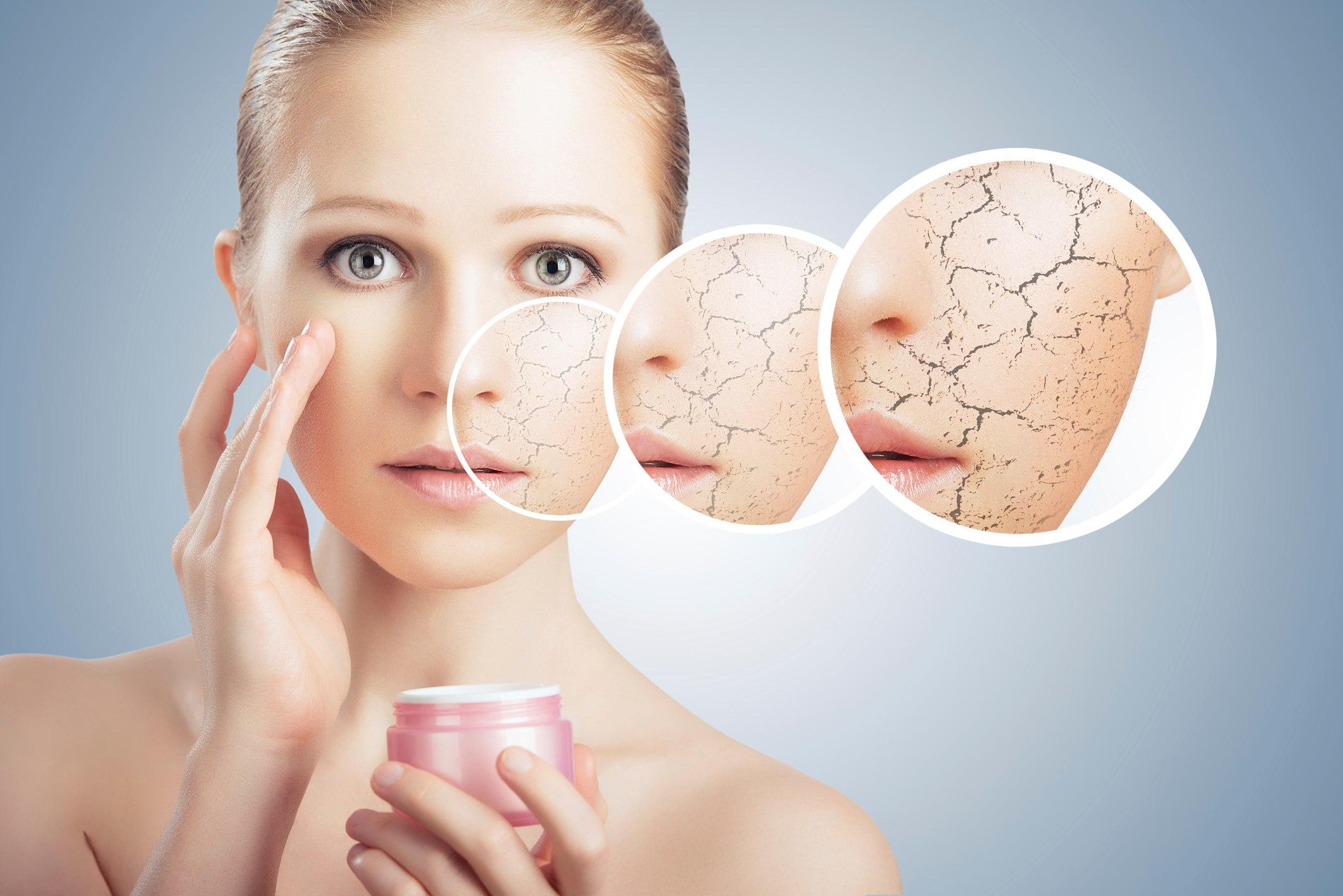 Как лечить сухую кожу?