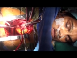 Patient awake during open heart surgery