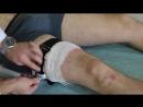 Методика наложения жгута при кровотечении