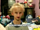 Kid With Progeria Raps A Freestyle Off Eminems