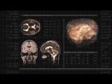 Операторы сознания - сущности паразиты