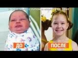 12 фото малышей до и после  детского дома.