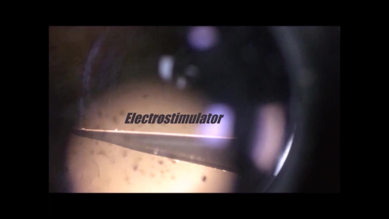 Кинематографическая демонстрация электростимулятора