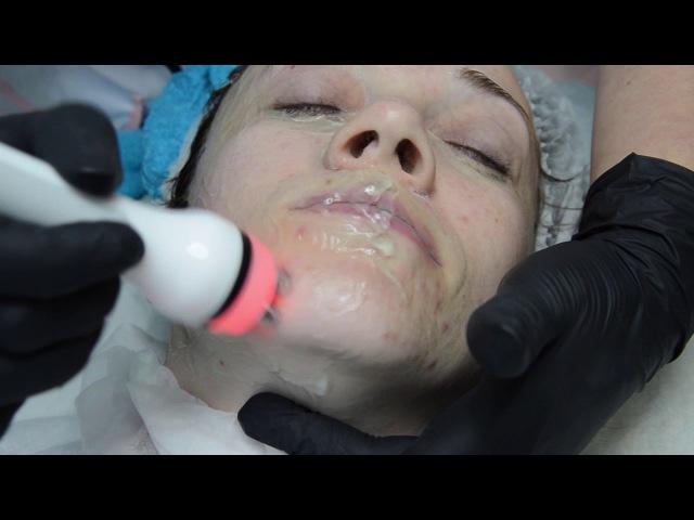 «Фитнес Мама» Волгодонска Марина Вялкова узнала как без операции подтянуть лицо