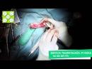 Перелом большеберцовой и малоберцовой костей у собаки по месту крепления серкляжа, поставленного ранее по причине разрыва передней крестообразной связки