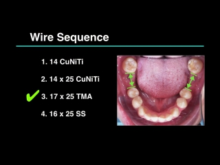 Clinical Tip- How to Secure the Wire End by Dr. Ashley Huang. Ортодонтия.