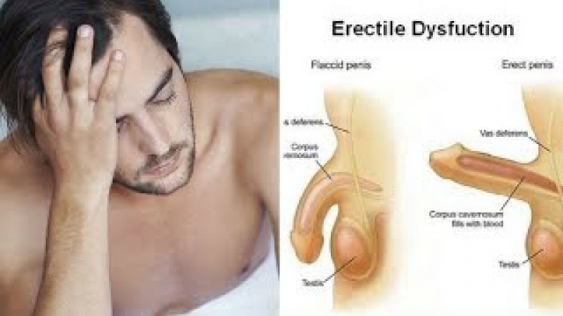 5 IMPORTANT CAUSES OF ERECTILE DYSFUNCTION