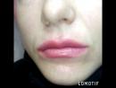 Збільшення губ 💉👄 до та після😍