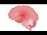 1.5 Каковы причины возникновения эпилепсии