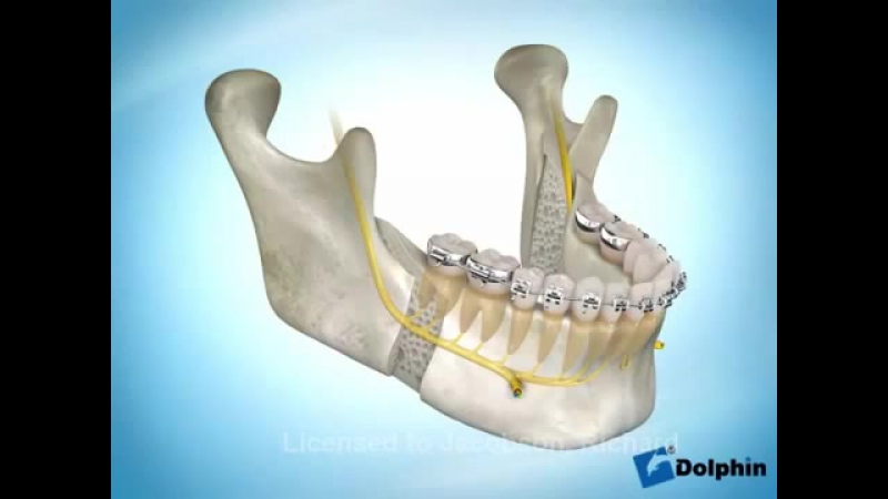 Стоматология СтомЛайф Индустриальный 12 Ортогнатическая хирургия _ Остеотомия нижней челюсти