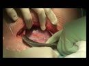 Повторное кесарево сечение с применением аргоноплазменной коагуляции