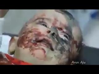 Stop Killing Sirian people - Oh God forgive us/ Остановите убийство Сирианских людей - О, Боже, прости нас