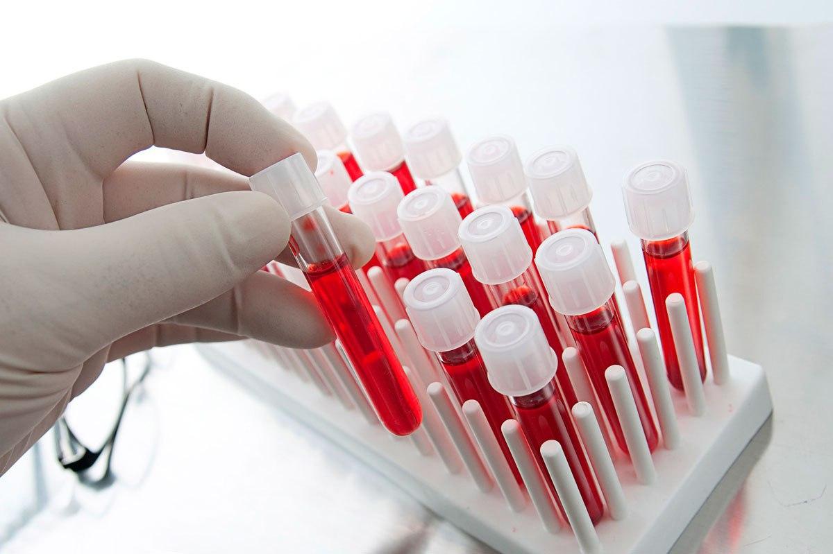 Для чего нужен анализ крови на хеликобактер